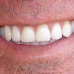 Для чего нужно проводить качественную профессиональную очистку зубов?