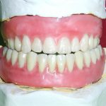 Ортопедия: как сохранить ваши зубы
